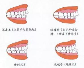 常见四种异常咬合关系