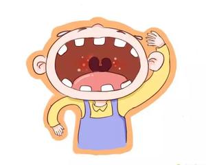 婴童疱疹性咽峡炎的症状有哪些?疱疹性咽峡炎如何护理?